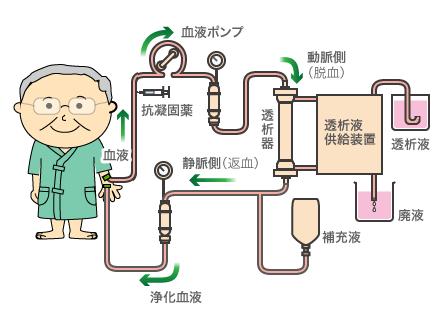 血液濾過透析(HDF) - 阿佐谷す...